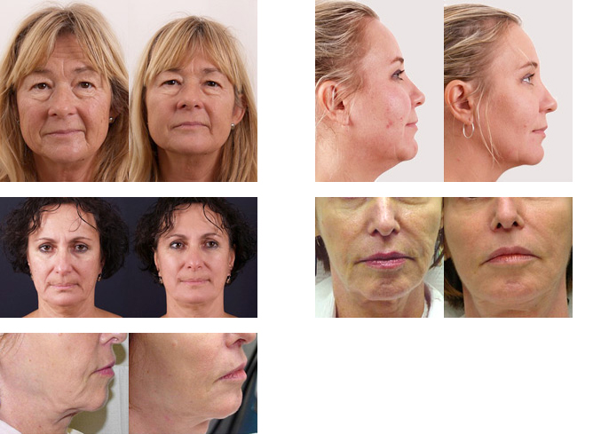 Exilis Elite™ Skin Tightening: Before & After photos