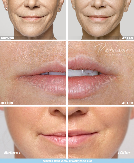 Before and After photos of Restylane Silk treatment