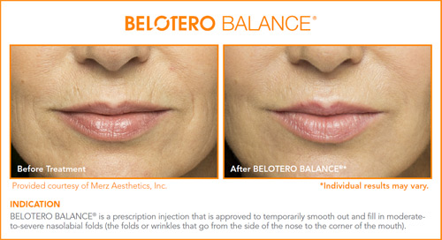 Belotero is great for smoothing out etched–in lines and wrinkles