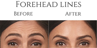 Botox Before & After Forehead Lines